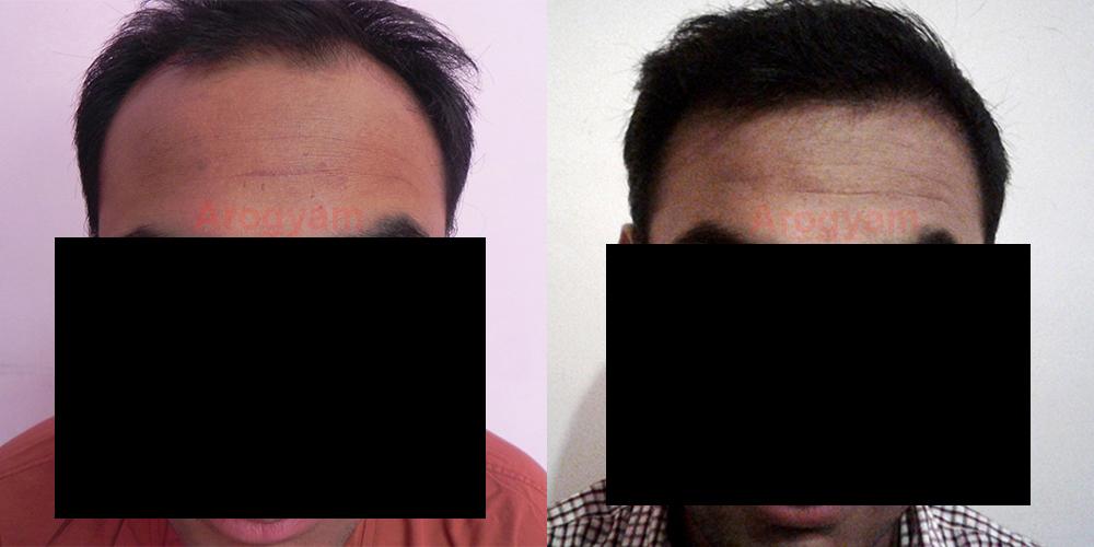 multiple hair follicle 6 hair follicle